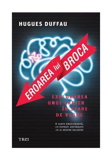 Eroarea lui Broca